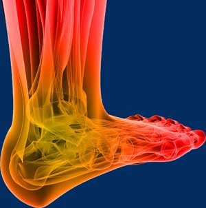Wellness Center Neuropathy